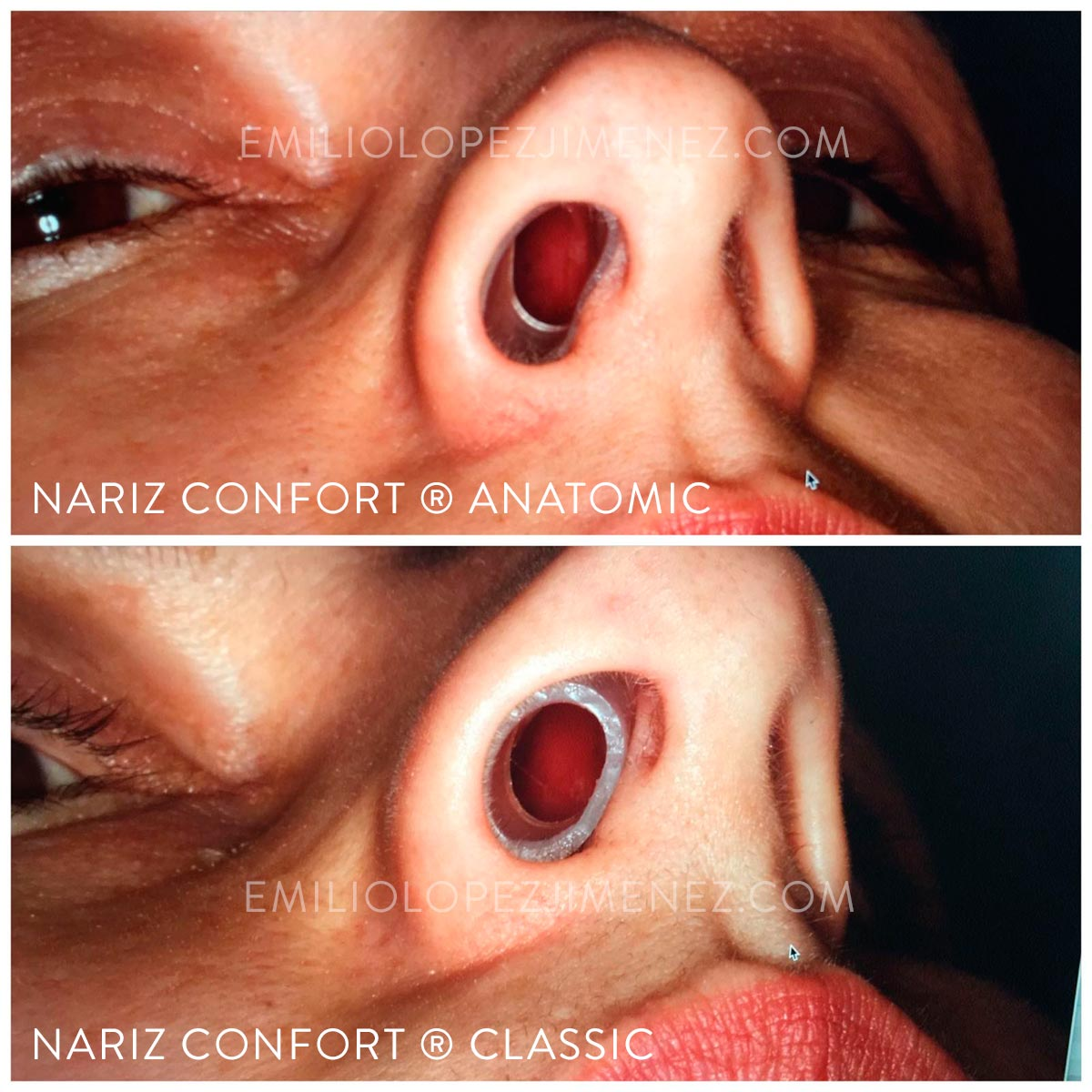Nariz Confort Classic vs Anatomic