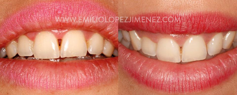 Recuperación de papilas y labios con Odontología Biológica