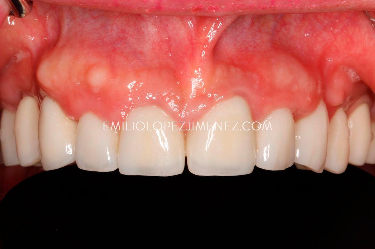 Rehabilitación completa con implantes altamente estética