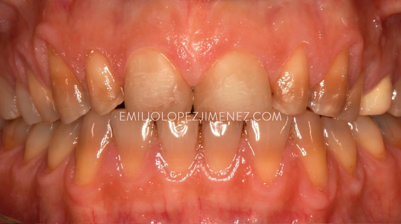 Tratamiento de estética dental con carillas de disilicato