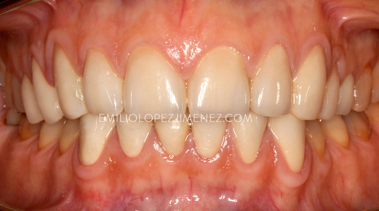 estetica-dental-carillas-silicato-despues