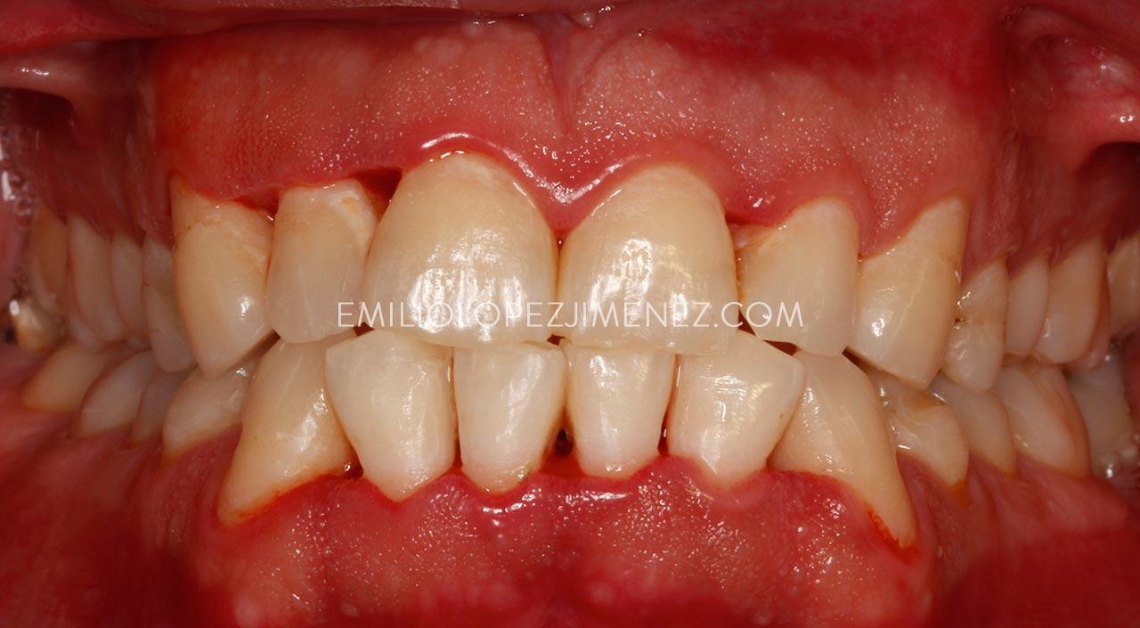 Gingivitis grave tratada en Clínicas Dentales Dr. Emilio López Jiménez con recuperación completa de las encías