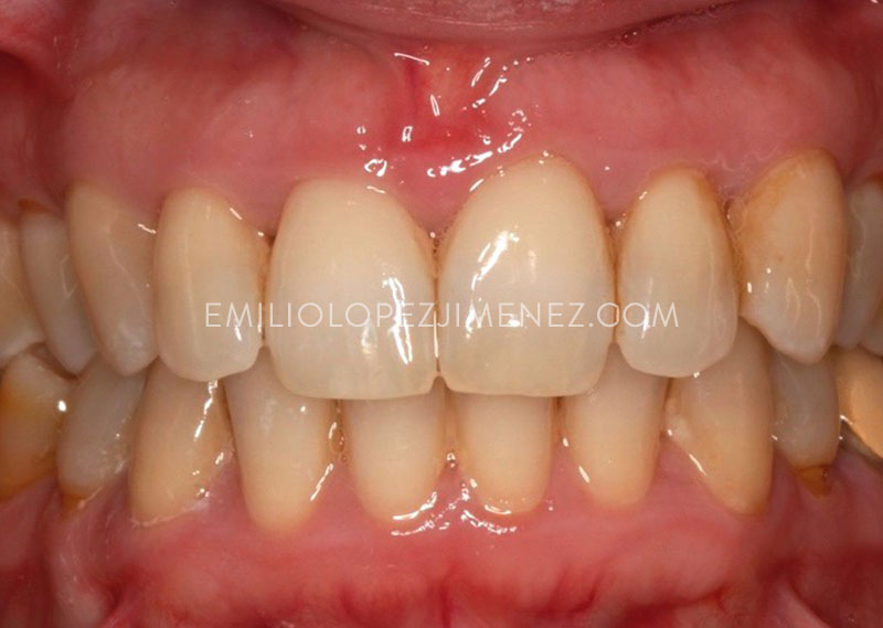 periodoncia-biologica-despues