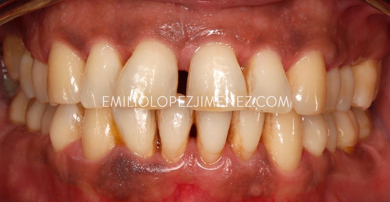 Chica joven con piorrea tratada con método biológico en Clínicas Dentales Dr. Emilio López Jiménez