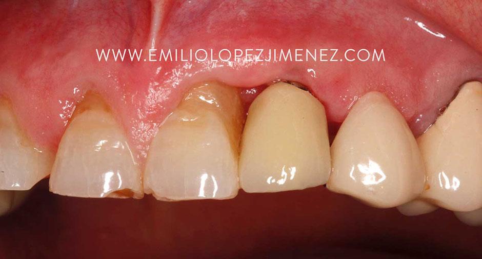 Recuperación de tejidos periimplantarios con métodos biológicos.