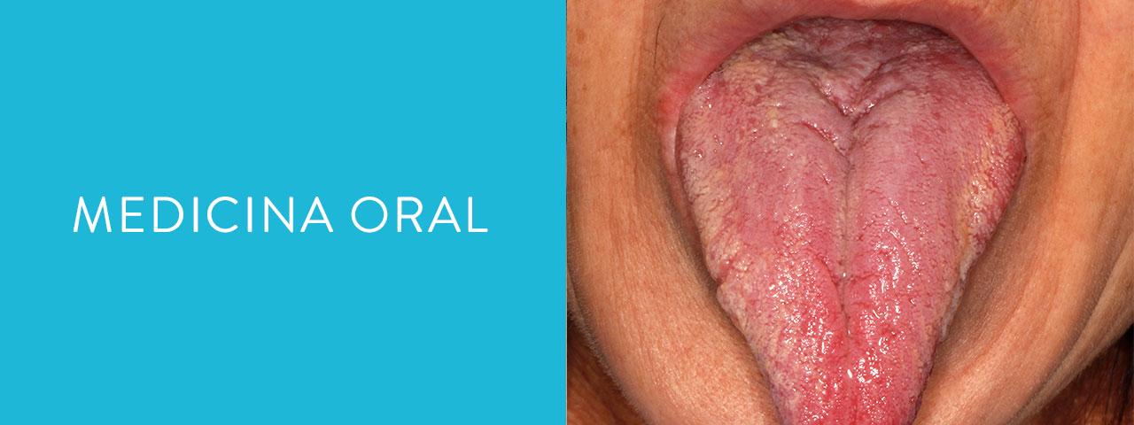 servicios medicina oral
