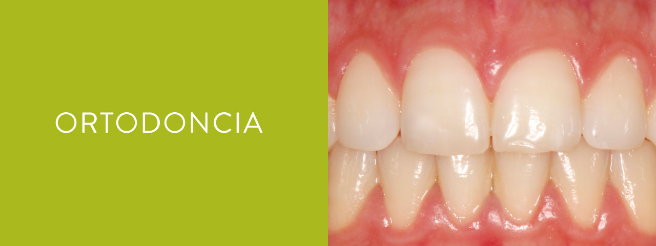 servicios ortodoncia