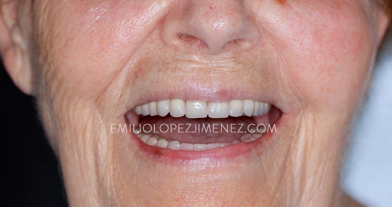 sobredentadura-implantes-resultado-sonrisa